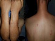 Bệnh phong cùi   tái xuất  : Triệu chứng bệnh phong là gì và có lây không?