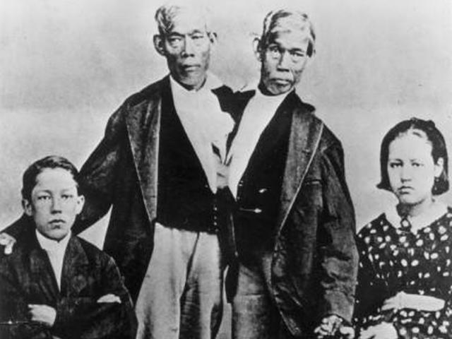 Hai ông bố lạ nhất lịch sử: Dính liền vẫn có 21 con với 2 phụ nữ chung một giường