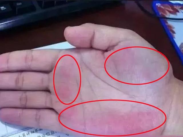 3 dấu hiệu trên tay cảnh báo sớm ung thư gan, có 1 trong 3 cũng nên kiểm tra sớm