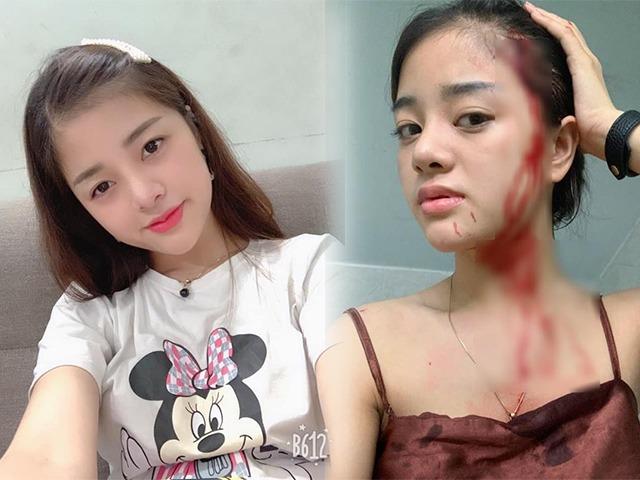 5 hot girl không ai ngờ lại lận đận tình duyên, bị bạn trai hoặc chồng cũ đánh đập