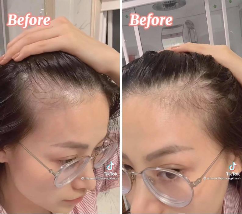 Rẻ-Đẹp-Dễ: Hoa hậu Phương Khánh tóc rụng cả mảng, nhìn công đoạn chữa hói mới không ai ngờ
