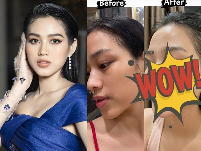 Đỗ Thị Hà đu trend dùng Acid lên mặt, da bong tróc nhưng kết quả sau 1 tháng mới phục