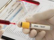 Tin tức - Đem 3 con đi xét nghiệm ADN vì nghi vợ ngoại tình, chồng chết lặng khi nhận kết quả