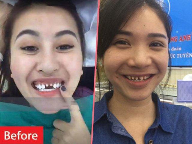Bọc răng sứ giúp Mai Phương Thúy, Ngọc Trinh lên đời nhan sắc, nhưng chưa bằng 2 mỹ nhân này!