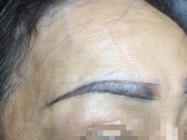 TP.HCM: Sau khi xăm chân mày, một người phụ nữ lâm vào tình trạng nguy kịch