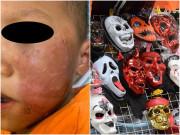 Nhiều trẻ viêm da do dùng đồ hóa trang Halloween, cha mẹ lưu ý điều sau để bảo vệ con