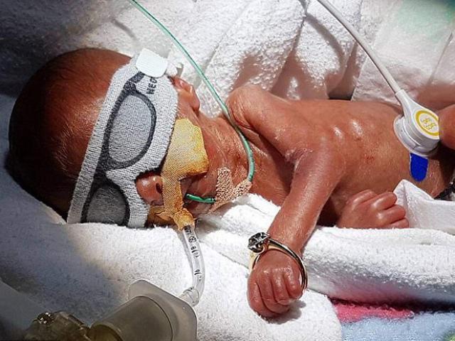 Bé gái sinh sớm chỉ nặng 0,5 kg, cánh tay đeo lọt nhẫn cưới của mẹ giờ ra sao?