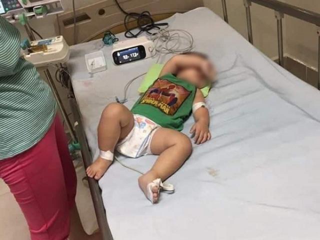 Gia đình ở Hà Nội có 2 con tử vong do mắc vi khuẩn ăn thịt người Whitmore