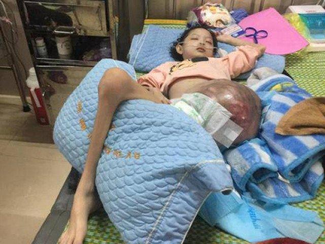 Xót xa bé gái 10 tuổi đẹp như thiên thần phải chống chọi với bệnh ung thư xương