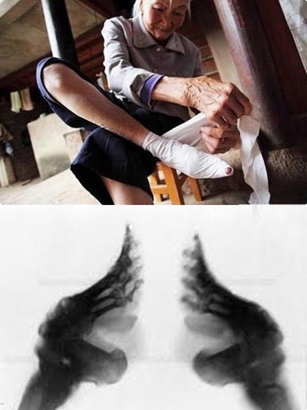 Rợn gáy các tiêu chuẩn làm đẹp của phụ nữ xa xưa, có người cắt máu để làm trắng da