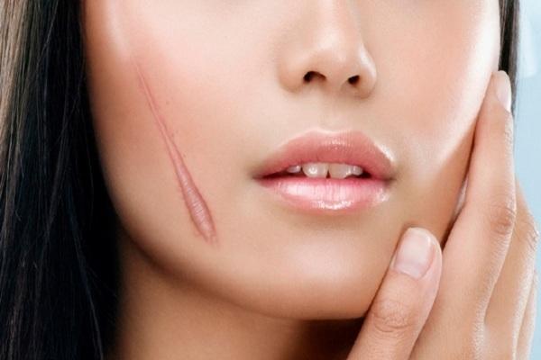 Cách trị sẹo lồi bằng các phương pháp tự nhiên an toàn hiệu quả nhanh nhất