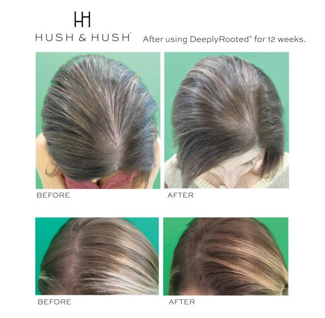 """F5 mái tóc với 4 dưỡng chất """"vàng"""" được chứng minh bởi khoa học trong y học tái tạo"""