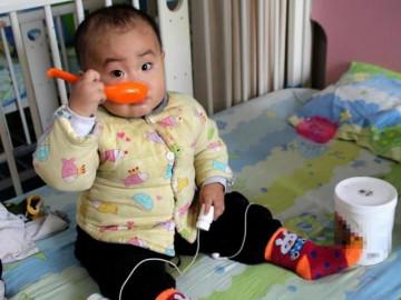 Chuyên gia mách mẹ nhận biết dấu hiệu suy dinh dưỡng ở trẻ