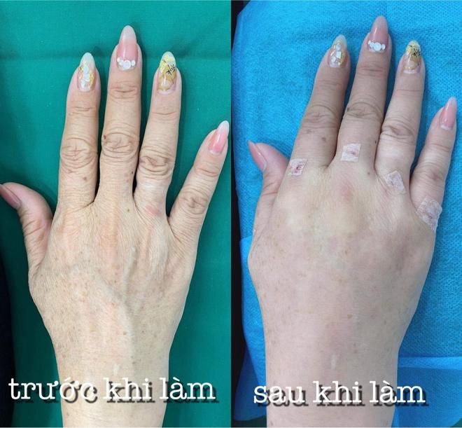 Bật mí bí mật giúp đôi tay không còn gân guốc, khô sần