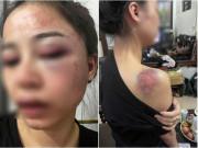 Tin tức - Tin tức 24h: Bị tố bạo hành vợ dã man từ 23h đến 4h sáng, chồng bất ngờ lên tiếng